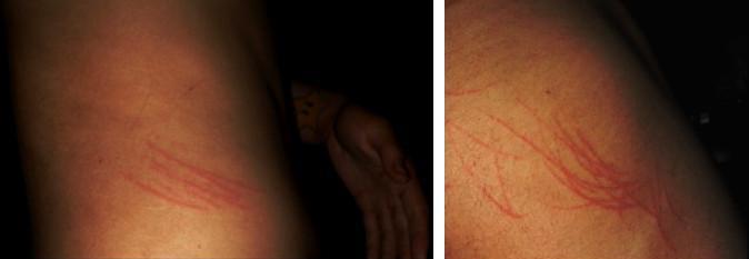 Photos des griffures au bas du dos et sur le bras de Joseph