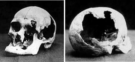 Crânes d'Andrew et Abby