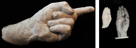 Moulage d'une main par le Dr Geley