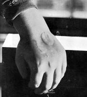 Stigmates sur la main